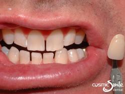 ZOOM teeth whitening – After – Whiter than A2
