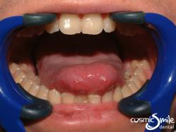 Laser Frenectomy – Tongue out – Before treatment
