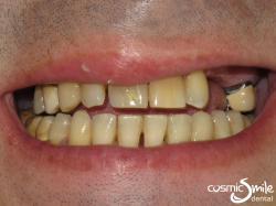 Snap on Smile – Missing upper teeth