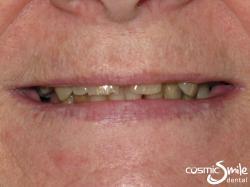 Snap on Smile – Short, dark teeth with gaps