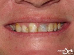 Snap on Smile – Discoloured teeth