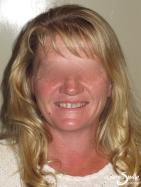 Snap on Smile – Discoloured teeth – Full face