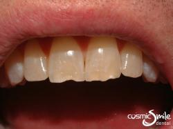 Composite – Chipped central incisors
