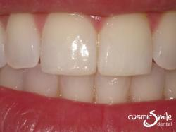 Composite – Teeth whitened and chip restored