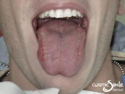 Laser Frenectomy – Tongue out – After laser tongue-tie treatment