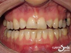 Snap on smile – Before – Uneven, small teeth