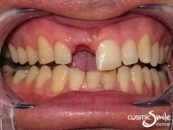 Dental Implant – Before – Missing front right central incisor