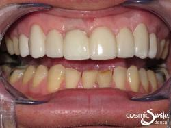 Dental Implant – After – Restored central incisor and lumineers on front teeth