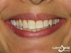 Invisalign – Aligned front teeth