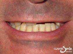Snap on Smile – Short and missing teeth
