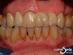Dental crowns – Chipped metal ceramic bridge