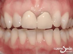 Dental crowns – Old metal crowns with dark edge