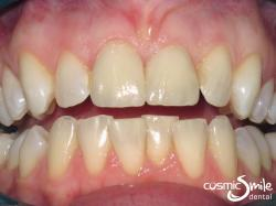 Dental crowns – Natural looking porcelain crowns in place