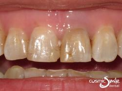 Internal bleaching- Before – Dark tooth with old composite