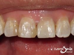 Internal bleaching- After – Whiter tooth with new composite