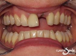 Dental Implant – Before – Front left central missing