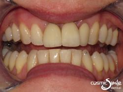 Dental Implant – After – Front left central restored