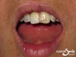 Enamel microabasion – Before – Centrals with dark brown enamel staining