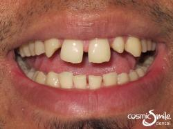 Composite – Large gaps because of a missing tooth and a peg lateral