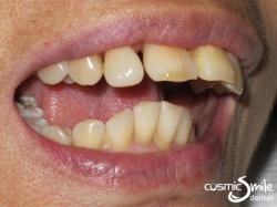 Composite – Smile looking much better with the gap closed