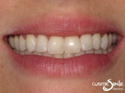Composite – Beautiful smile with the lateral incisors lengthened