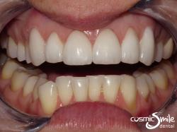 Porcelain veneers – After – Beautiful, white smile