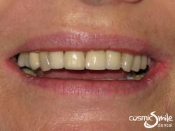 Dental Implant – After – Smile with implants in place