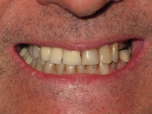 Opinion you photos shaved teeth for porceline veneers