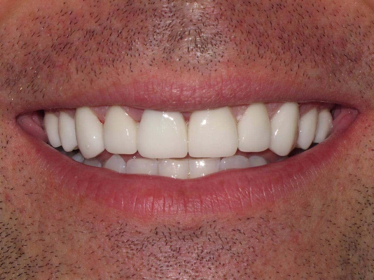 Photos shaved teeth for porceline veneers share
