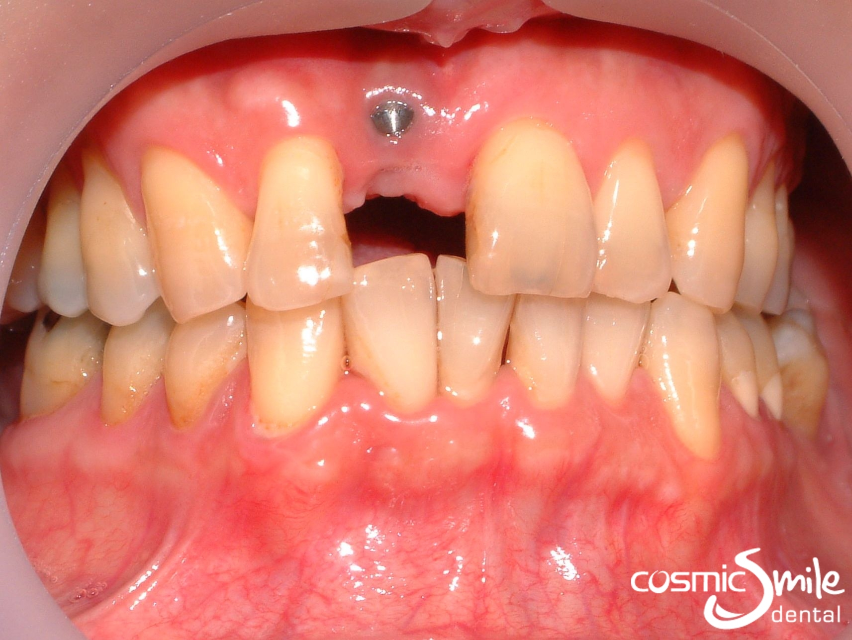 Teeth Implants In Sydney Before And After Cosmic Smile