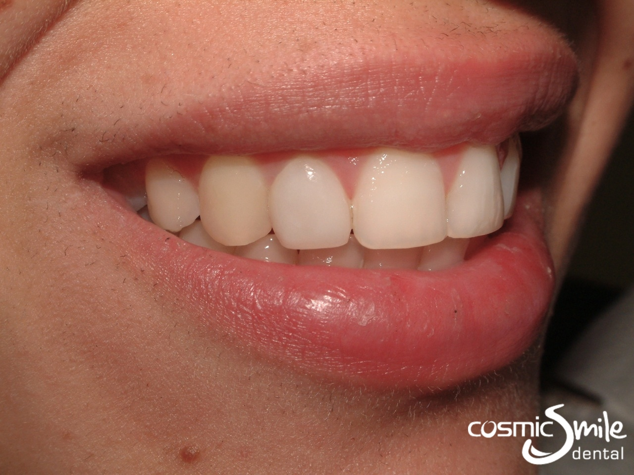Sydney Lumineers Before And After Cosmic Smile Dental
