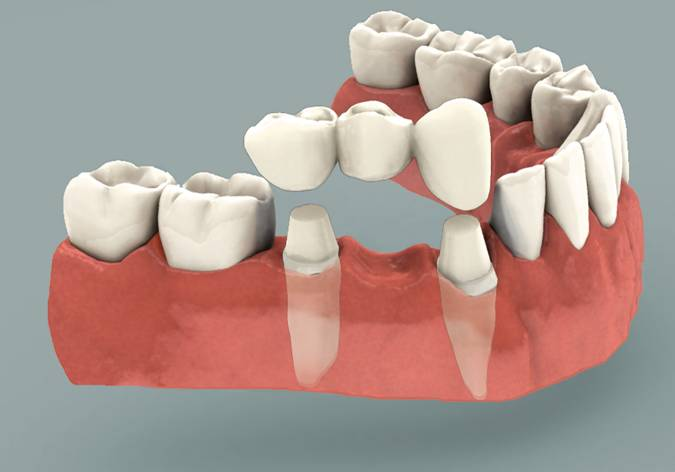 Dental Bridges in Sydney