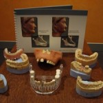 Implant open day models