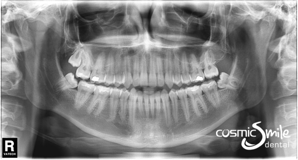 Panoramic x-ray (OPG) of a healthy young jaw