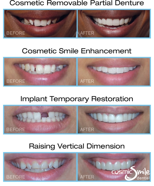 Before and after cosmetic dental treatment