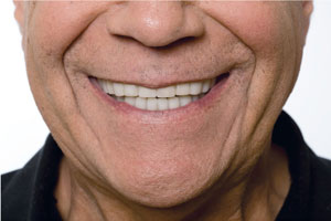 Bruxism after Snap on smile