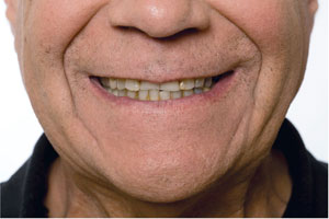 Bruxism before Snap on smile