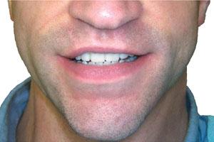 Diastema after Snap on smile