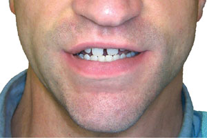Diastema before Snap on smile