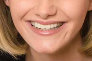 Enhancing Existing Smile