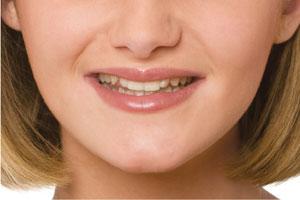 Teeth Before Enhancing Existing Smile