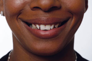 Malalignment before Snap on smile