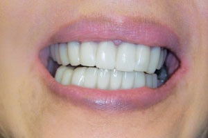 Smile after Snap-on smile