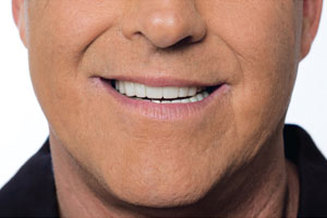 Tetracycline Staining after Snap on smile