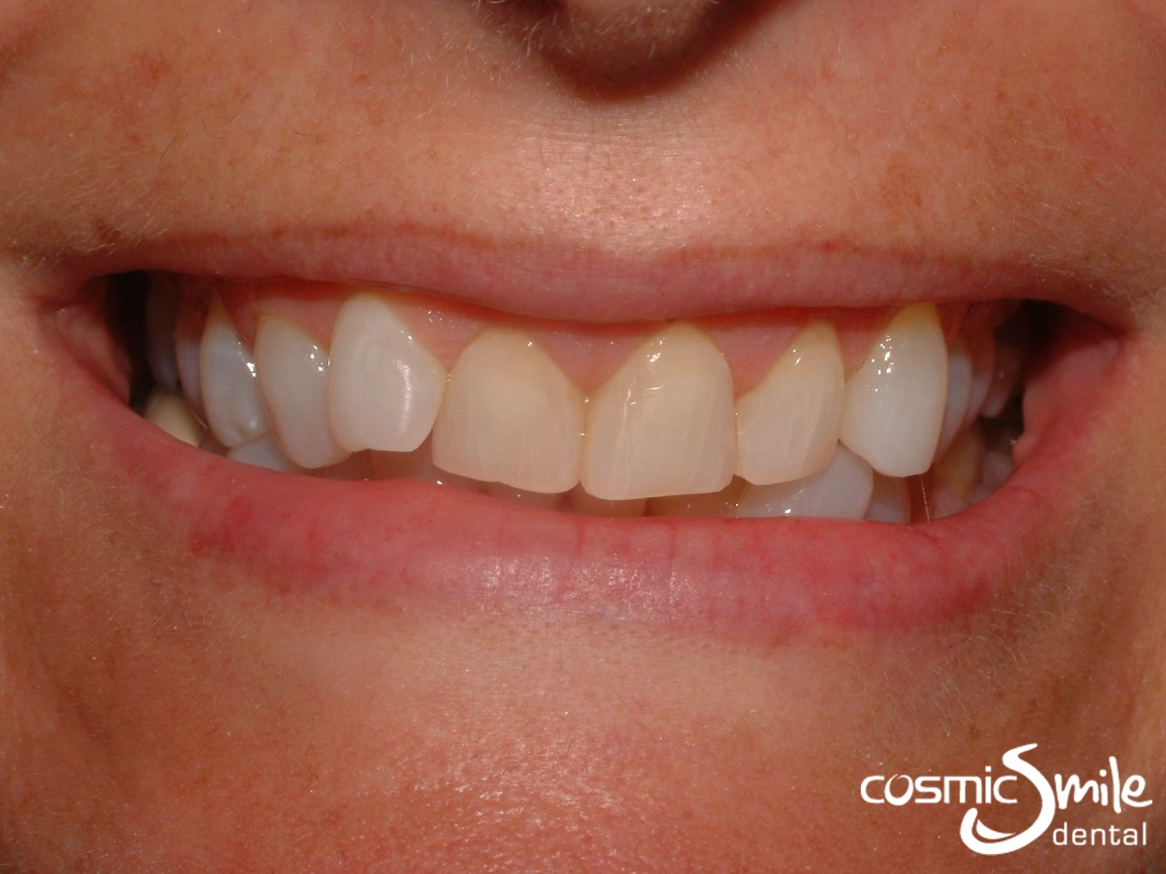 Sydney Lumineers Before and After - Cosmic Smile Dental