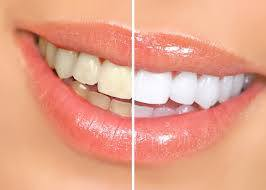 Before and After Teeth Whitening treatment