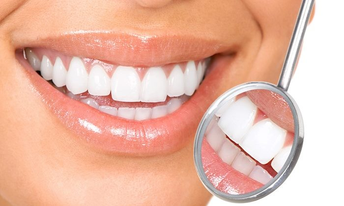 effective teeth whitening methods in Sydney