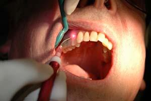 Sydney laser dentist