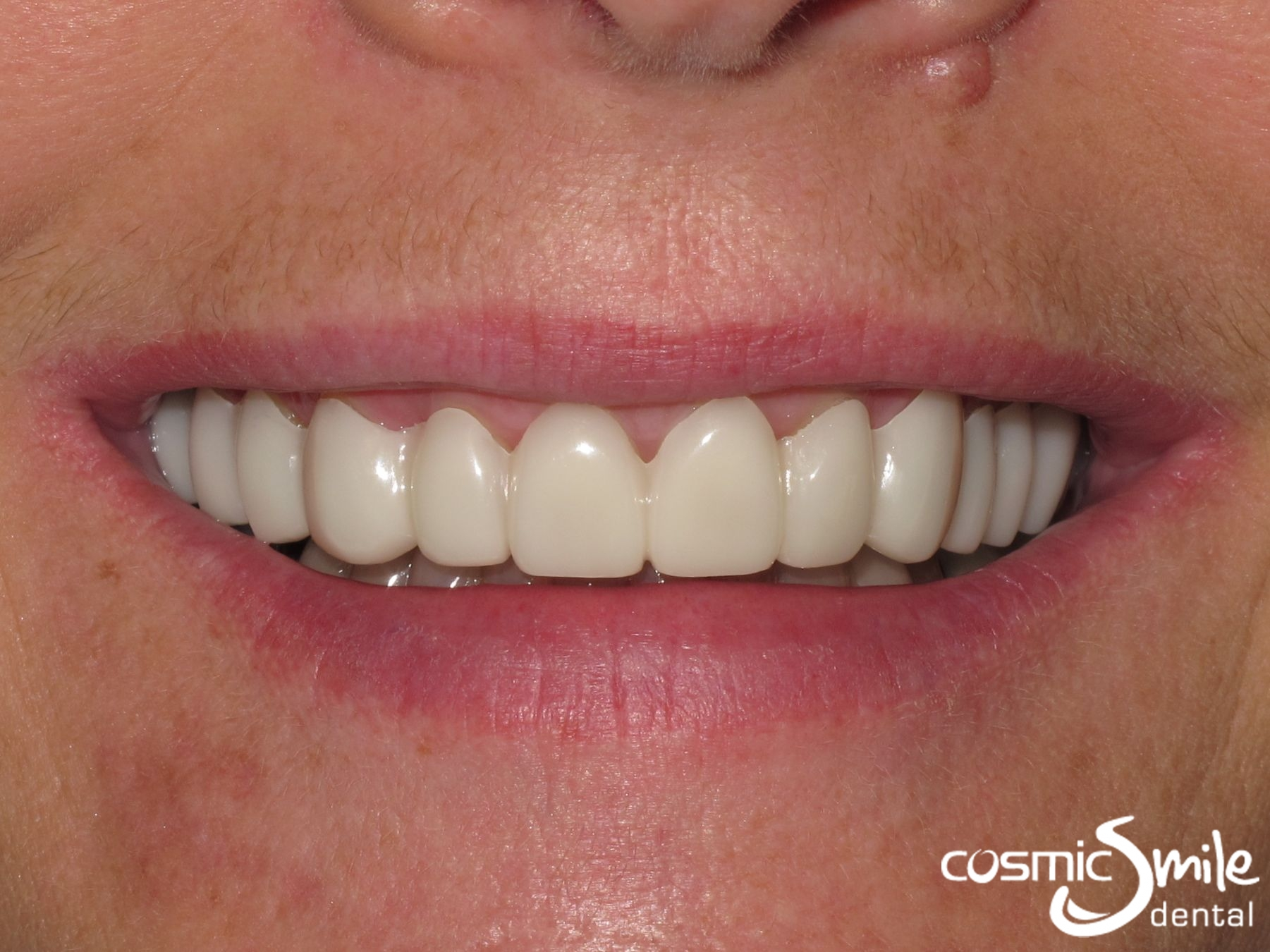Temporary Veneers Snap on Smile in place