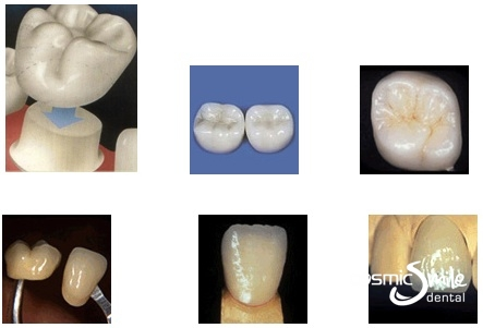 Dental crowns in Sydney